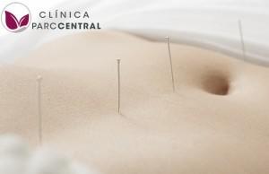 acupuntura para la fertilidad