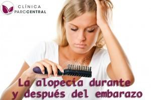 alopecia durante y después del embarazo